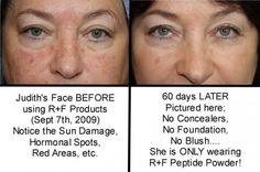 Reverse Regimen Results after 60 days - works on sun damage and redness!