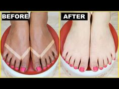 How To Remove SunTan (Effective + Instant) - Skin Brightening | Anaysa - YouTube
