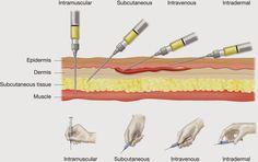 injections parentérales infirmier angle technique