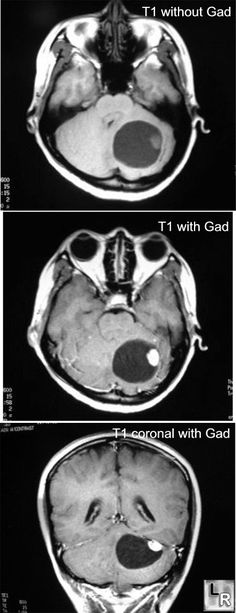 MRI of brain shows a cystic lesion in the cerebellum with an enhancing nodule (post-Gadolinium)