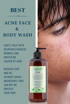 Acne Vinegar Face Wash / This unique non soap acne cleanser is made to fight blemishes and future acne breakouts. It can help restore your skin's nutritive pH balance which helps reduce red marks and acne. Immediately stops the breakout or pimple from getting bigger and helps it to disappear. Buy at https://justnutritive.com/clear-vinegar-face-wash/