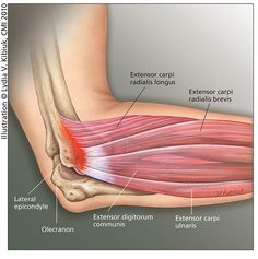 Tennis Elbow: An Overview - HSS.edu - Most interesting thing from this article: It seems that through MRI scans, people who have not been having any Tennis Elbow symptoms (pain, etc.) are sometimes found to have evidence of advanced Tennis Elbow! - My tho Elbow Pain, Muscle Anatomy, Body Anatomy, Tennis Arm, Play Tennis, Tennis Elbow Test, Tennis Elbow Relief, Elbow Anatomy, Workout Plans