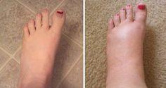 Remèdes naturels contre le gonflement des chevilles, des jambes et des pieds. Des solutions naturelles pour traiter l'œdème.