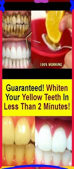 The simplest ritual for teeth whitening..