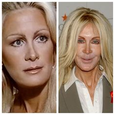Joan Van Ark ..... What happened.....before and after