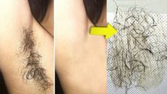 In 5 minutes remove unwanted hair from your body permanently and painlessly Working) - urbanremedies. Korean Beauty Routine, Beauty Routines, Beauty Care, Beauty Hacks, Beauty Tips, Health Routine, Dull Hair, Pregnancy Health, Unwanted Hair