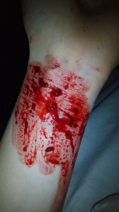Some people cut themselves because it's the only pain thy have control over
