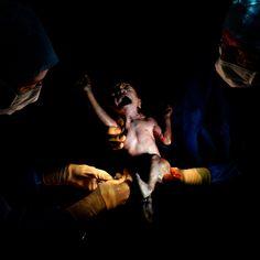 Dal grembo al mondo, questi neonati sono stati fotografati pochi secondi dopo la nascita (FOTO)