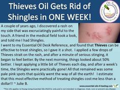 Thieves for shingles! Please not she said it stung. I would recommend diluting with a carrier oil at first.