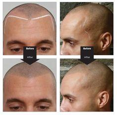 THE NO HAIR HAIR LOOK! by TotallyAesthetic.com