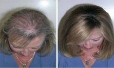Mnoho ľudí, vrátane mužov aj žien trpí rednutím a vypadávaním vlasov. Dokonca to postihuje čoraz viac aj ľudí v mladšom veku. Dnes vám preto ukážeme recept na jeden jednoduchý domáci šampón, ktorý vám pomôže obnoviť rast vašich vlasoch. S ním budú vlasy nielen opäť rásť, ale aj zhustnú,