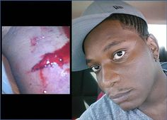 Former wrestler, Brian McGhee, changed his Facebook profile photo to a bloody stump of a body part.