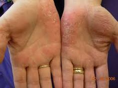 Image result for palmoplantar pustulosis pictures on the hands. This is how my hands used to look like before clearing from PPP