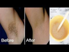 Ladies :Just 2 Minutes And Underarm Hair Are Gone Forever! – Health Tips 4 You