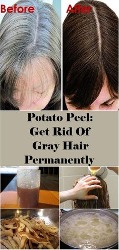 Hair Remedies The most common sign of aging is definitely hair that has started to turn gray. Grey Hair Remedies, Natural Remedies, Hair Again, Natural Hair Styles, Long Hair Styles, Peeling Potatoes, Tips Belleza, Hair Loss, Natural Skin