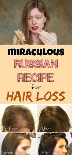 Miraculous Russian recipe for hair loss
