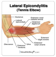 Anatomy of the elbow - the tendons and soft tissue that are affected by tennis elbow (lateral epicondylitis). Hand Therapy, Massage Therapy, Physical Therapy, Elbow Anatomy, Hip Anatomy, Muscle Anatomy, Tennis Elbow Relief, Tennis Arm, Tendinitis