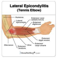 Effective Hip Flexor Stretch: Tennis Elbow (Lateral Epicondylitis)