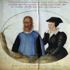 """""""Petrus Gonsalus, The Hairy Man""""    By Joris Hoefnagel (1542-1600) from his """"Elementa Depicta.""""  (Image found in FMR magazine.)"""
