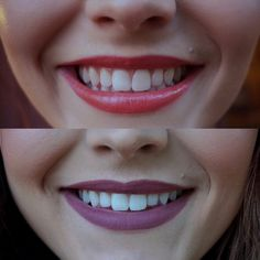 Of my teeth whitening experience with charcoal teeth whiten Healthy Food Quotes, Local Dentist, Blonde With Pink, Charcoal Teeth Whitening, Healthy Teeth, Kids Diet, White Teeth, Beauty Hacks Video, Oral Hygiene