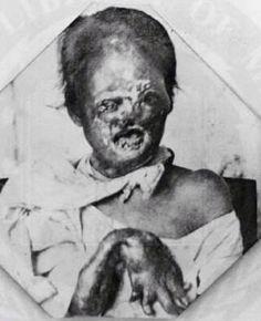 Leprosy patient, 1890.