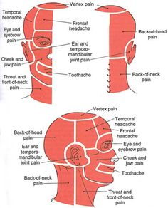 The Trigger Point & Referred Pain Guide - MyoRehab. Good diagrams showing where pain originates from and is referred to. Jaw Pain, Neck Pain, Headache Map, Referred Pain, Trigger Point Therapy, Accupuncture, Reflexology Massage, Trigger Points, Medical Information
