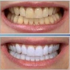 Top Oral Health Advice To Keep Your Teeth Healthy. The smile on your face is what people first notice about you, so caring for your teeth is very important. Unluckily, picking the best dental care tips migh Best Teeth Whitening Kit, Teeth Whitening Remedies, Natural Teeth Whitening, It Works Products, Brush My Teeth, White Teeth, Tips Belleza, Oral Hygiene, Oral Health