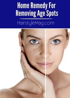 How to safely remove age and skin spots at home. Useful home remedy for fading and removing age spots. Liver spots aka skin spots can appear almost all over the body. On your hands, legs, shoulders...