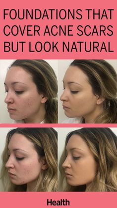 how to get rid of extremely dry skin on face