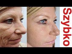 Zmarszczki Znikną, Gdy Zaczniesz Używać Tej Przyprawy - YouTube Lotion, Avocado Oil, Anti Aging, Moisturizer, Youtube, Wax, Remedies, Vitamins, Layers Of Skin