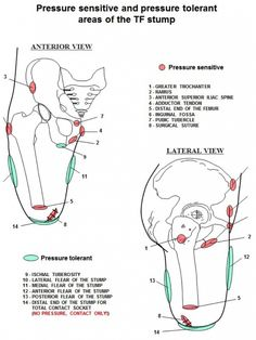 Prosthetics - Physiopedia, universal access to physiotherapy knowledge.