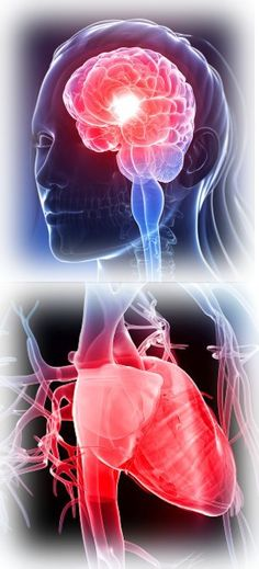 New Research Shows Migraine Responsible for 13% of Deaths in Women - Migraine