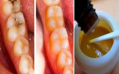 Heal Tooth Decay And Reverse Cavities Naturally With THIS Powerful Tooth Mask - Your Healthy Tips Teeth Health, Healthy Teeth, Dental Health, Healthy Tips, Natural Home Remedies, Natural Healing, Herbal Remedies, Health Remedies, Health And Beauty Tips