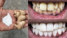 In two minutes, the white teeth whitening and globe such as pearls, this recipe / treatment at home Health Remedies, Home Remedies, Natural Remedies, Health And Beauty Tips, Health Tips, Teeth Health, Healthy Teeth, Gym Workout Tips, Fitness Workouts