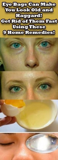 Eye Bags Can Make You Look Old and Haggard! Get Rid of Them Fast Using These 9 Home Remedies!