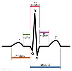 Paramedic Cardiology and ECG   Summary Cheatsheet