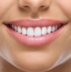 We know how expensive whitening can be sometimes so check out these natural ways be found to help get a brighter smile :) Smiles always look best with sparkling white teeth!! ~