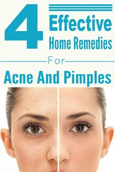 Fit and Well: 4 Effective Home Remedies For Acne And Pimples