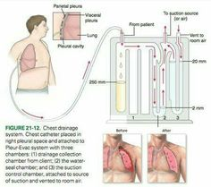 chest tube seals and water on pinterest : chest tube diagram - findchart.co