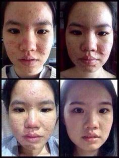 Acne can be killed within few months like nothing happen with her skin!!!