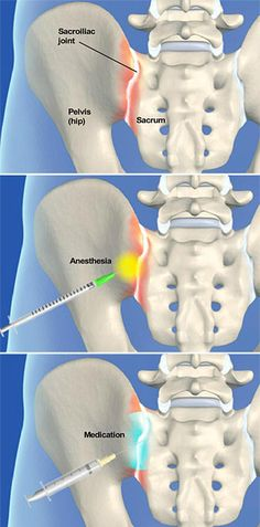 A sacroiliac joint steroid injection procedure is performed to relieve pain caused by arthritis in the sacroiliac joint where the spine and hip bone meet. The steroid medication can reduce swelling and inflammation in the joint. #spine #health http://www.southeasternspine.com/procedures-treatments/sacroiliac-joint-steroid-injection/