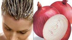 Comment utiliser l'oignon pour la croissance des cheveux …  Une Astuce de Grand-Mère !