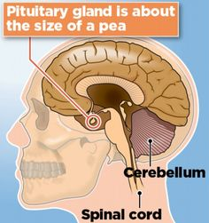 ARTICLE OF INTEREST: How damage to the pituitary gland could be behind 30,000 cases of 'chronic fatigue' www.dailymail.co.uk/health/article-2631263/How-doctors-failing-spot-brain-injury-30-000-cases-chronic-fatigue.html