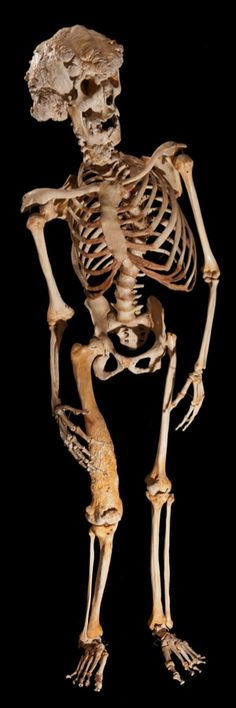 The skeleton of Joseph Carey Merrick, aka The Elephant Man. Image Ray Crundwell, Queen Mary University of London.