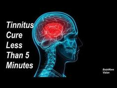 (7) Tinnitus Cure In 5 Minutes   Most Powerful Tinnitus Sound Therapy Binaural Beats Music For Treatment - YouTube