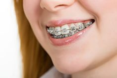Your orthodontist will play a large role in understanding the needs of your mouth and supporting you in executing a plan to improve the appearance and health of your smile.