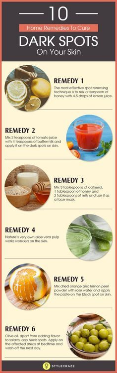 10 Home Remedies To Cure Dark Spots On Your Skin