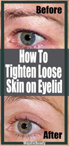 How To Tighten Loose Skin on Eyelid – Ways For Beauty Natural Skin Tightening, Face Tightening, Skin Firming, Laser Skin Tightening, Saggy Eyelids, Sagging Skin, Tighten Neck Skin, Tighten Stomach, Lower Stomach