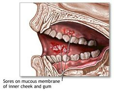 Mouth Ulcers Causes And Symptoms