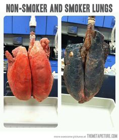 Non-smoker vs. smoker lungs…There is like, NO reason to smoke. It kills you, its expensive, it makes you stink and it's inconvenient. And it hurts those around you. No benefit.